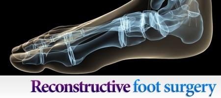 Reconstructive-Foot-Surgery